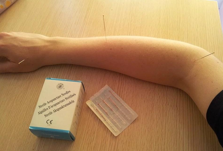 L'acupuncture, une solution miraclepour arrêter de fumer ?